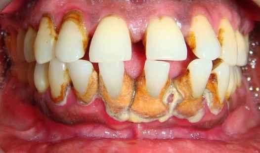 7 Cara Menghilangkan Karang Gigi Dengan Baking Soda
